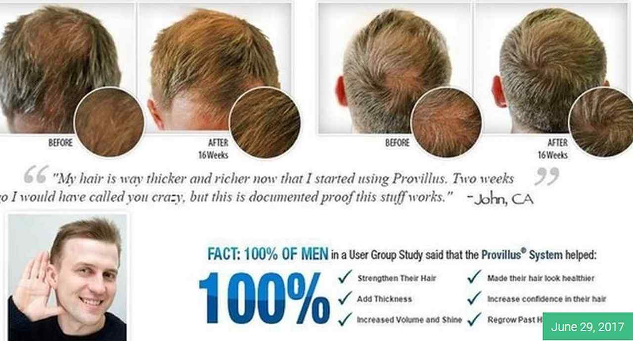 How To Treat Hair Loss Naturally At Home Provillus