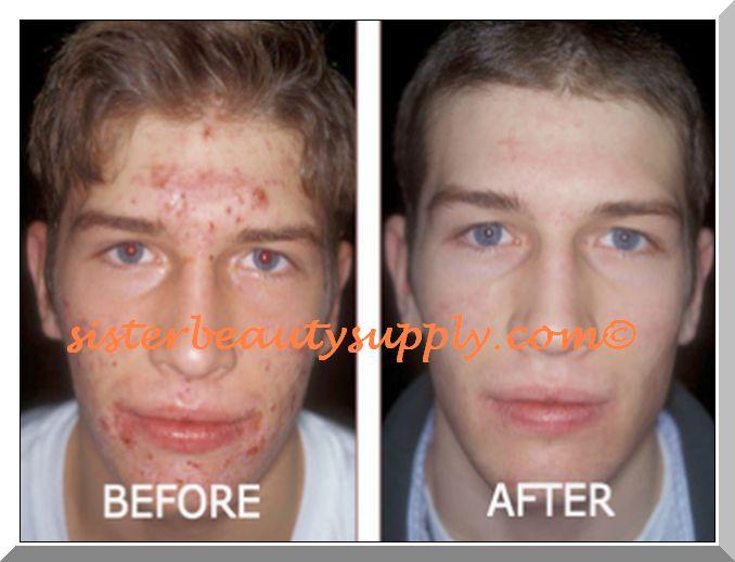 pimple acne treatment